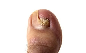 fungal nail infection treatment_5677508_s
